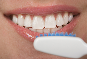 veneers brushing